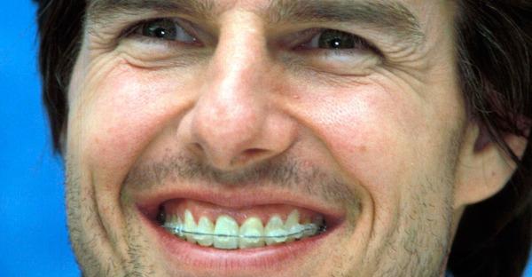 Tom Cruise und Co: Diese Stars hatten eine Spange