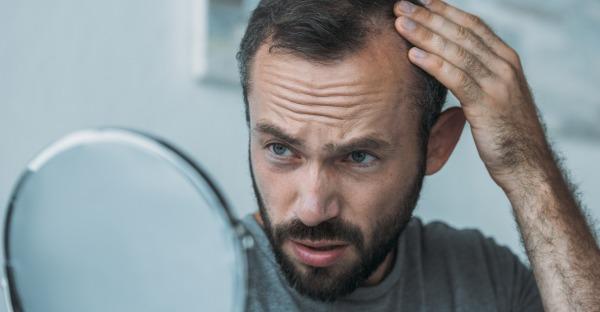 Kopfsache: Erblichen Haarausfall bremsen